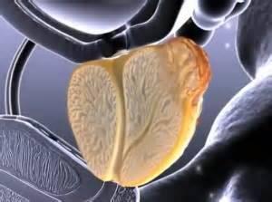 острый абсцедирующий недуг – наиболее опасный вид заболевания, поражающий значительное количество фолликулов простаты с образованием гнойных включений, с риском попадания гноя в кровь и развития сепсиса