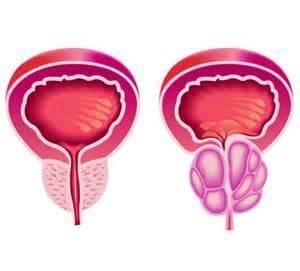 Лекарство Афала подавляет первые симптомы болезней предстательной железы воспалительного характера