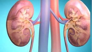 Гломерулонефрит — болезнь почек