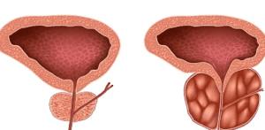 Увеличение, гипертрофия предстательной железы у мужчин