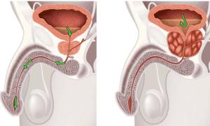 Простатит − воспалительный процесс в простате, вследствие которого возникает отек и сдавливание мочевыводящего канала