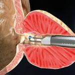 Трансуретральная резекция простаты (ТУР)