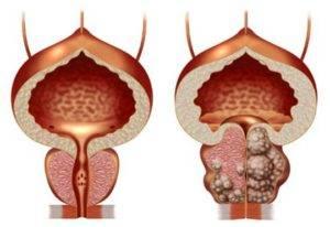 Нормальная простата и аденома простаты