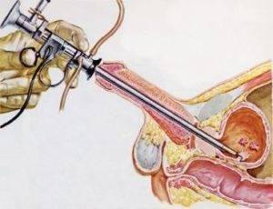 Новые методы лечения аденомы простаты