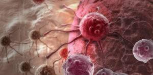 Метастазы поражают подвздошные, подчревные и запирательные лимфоузлы