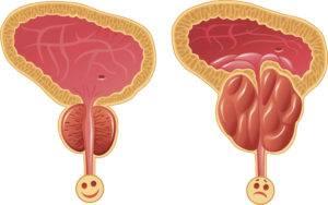 Простата: норма и отклонения
