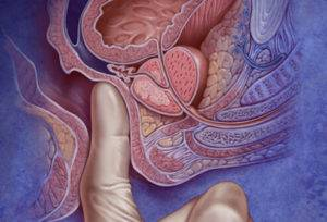 Тот или иной эффект от массажа будет зависеть от того, как далеко успела зайти болезнь, и как именно будет производиться массаж