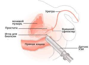 Размеры и объем предстательной железы в норме