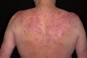 Аллергическая реакция на препарат