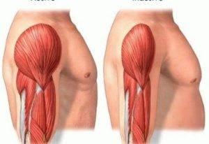 Уменьшение мышечной массы