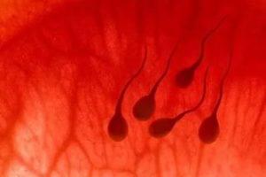 Включения в спермограмме: кровь, слизь, макрофаги