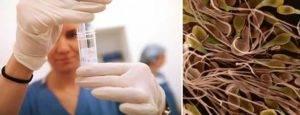 Повышенная вязкость в спермограмме