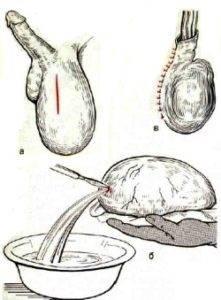 Операция при водянке яичка
