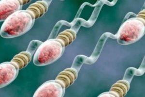 Олиготератозооспермия