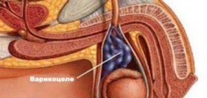 Что такое варикоцеле у мужчин
