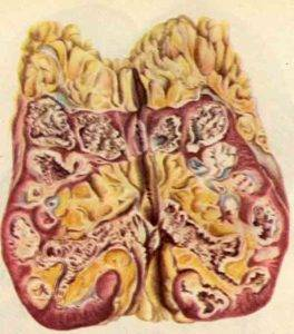 Туберкулез яичек