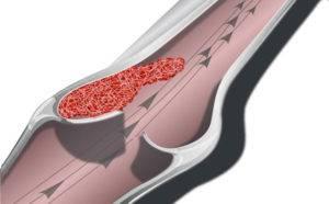Симптомы и лечение никтурии у мужчин