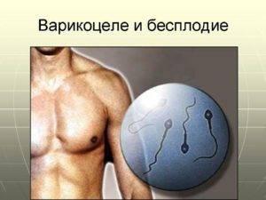 Лечение варикоцеле у мужчин