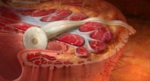 Лечение везикулита у мужчин