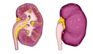 Если вовремя не лечить воспаление крайней плоти, это может привести к пиелонефриту