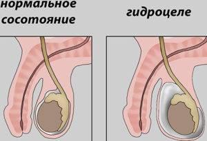 Что делать если болит яичко - лечение