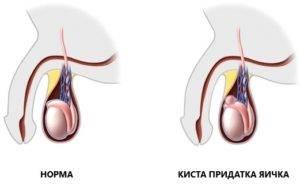 Препараты от кисты яичка мужчин