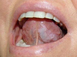 Оральный триппер во рту