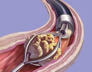 Симптомы и лечение уролитиаза у мужчин