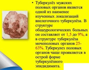 Виды и классификация эпидидимита