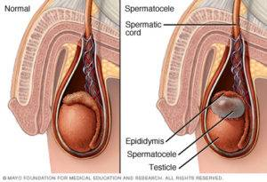 Сперматоцеле