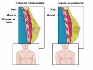Ложная и истинная гинекомастия