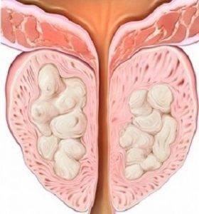 Кисты предстательной железы
