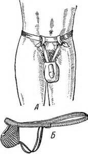 Удаление кисты яичка у мужчин