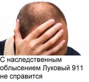 Луковый шампунь 911 от выпадения волос