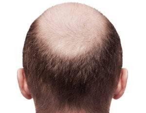 Шампунь от Агафьи от выпадения волос