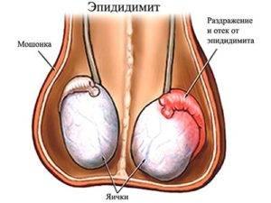 Причины эпидидимита у мужчин