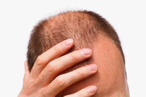 Что делать если ломаются и выпадают волосы