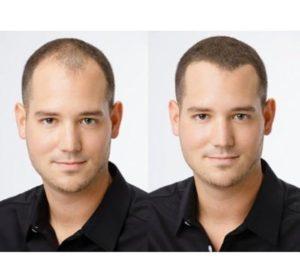 Препараты для роста волос