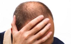 Шампунь Алерана против выпадения волос