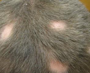 Лечение гнездной алопеции у мужчин