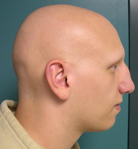 Prirodan lek za opadanje kose