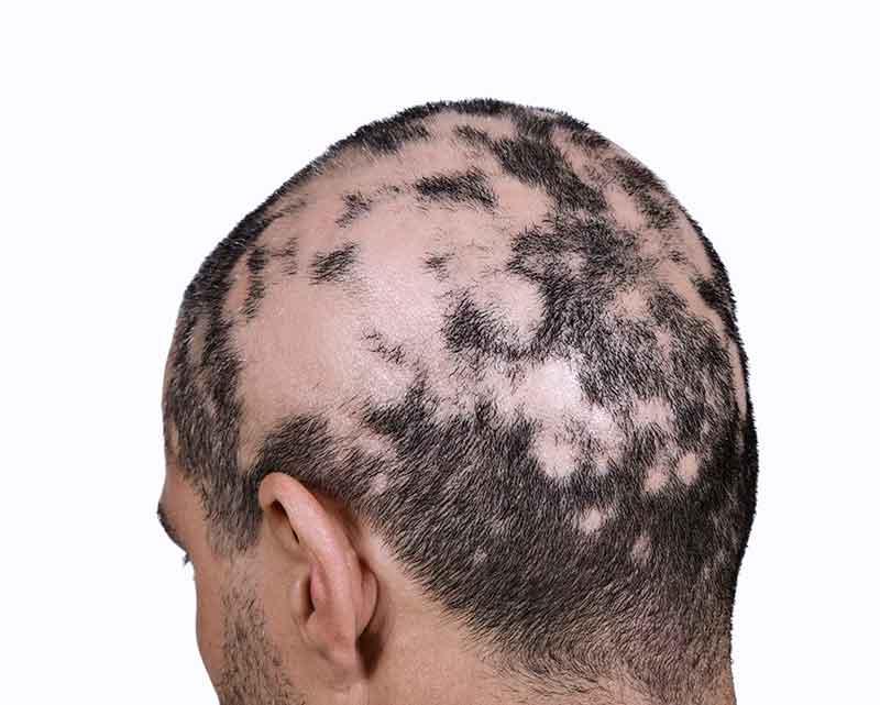 Krema protiv opadanja kose