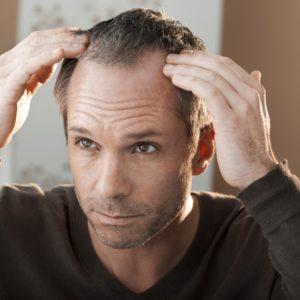Почему на голове выпадают волосы