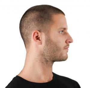 Ампулы Vichy от выпадения волос