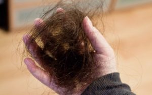 Очень сильно выпадают волосы