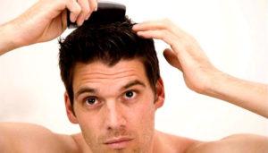 Жирная кожа головы и выпадение волос