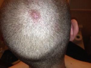 Уколы для роста волос на голове