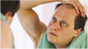 Выпадают волосы от стресса