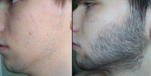 Как ускорить рост волос на лице